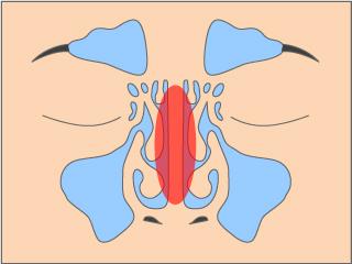 鼻中隔わん曲症